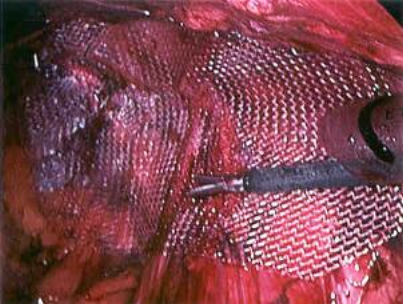 Laparoscopic hernia
