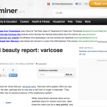 Natural beauty report: varicose veins